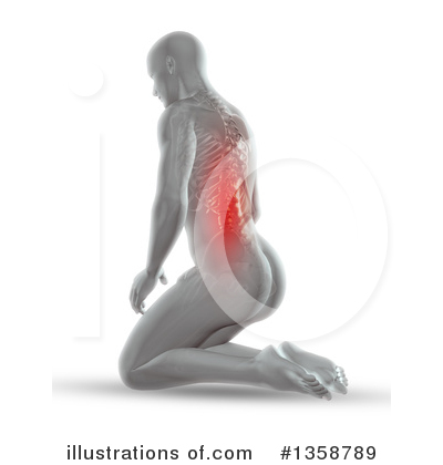 Back Pain Clipart #1358789 by KJ Pargeter