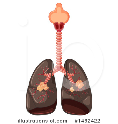 Lungs Clipart #1462422 by Graphics RF