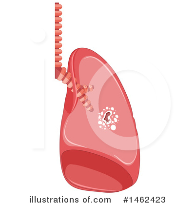 Lungs Clipart #1462423 by Graphics RF
