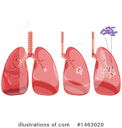 Lungs Clipart #1463020 by Graphics RF