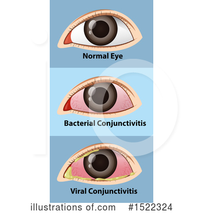 Optometry Clipart #1522324 by Graphics RF