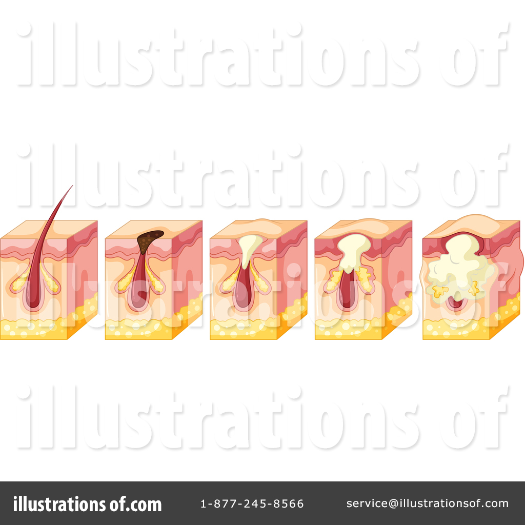 Pimple Clipart #1445797 - Illustration by Graphics RF